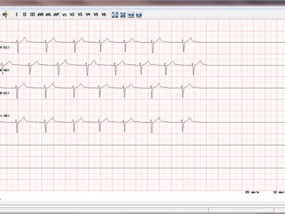 EKG-Auswertung1